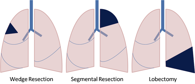 lung-cancer-lung-resection-diagram