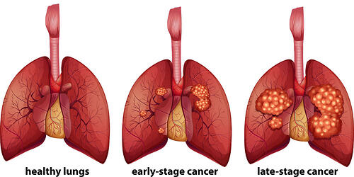 lung-cancer-stages-diagram-1